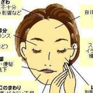 【そうだったんだ!】顔にできたニキビの場所でわかる健康状態(画像)